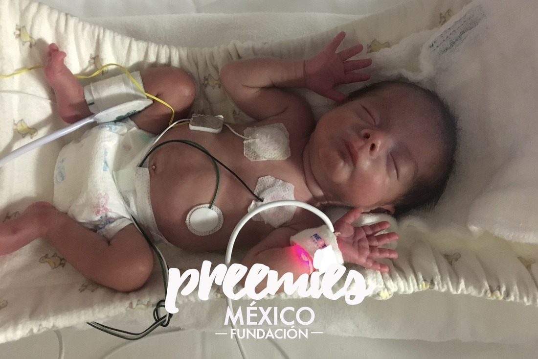 La Lección De Vida Que Mi Bebé Prematuro Me Da Todos Los Días